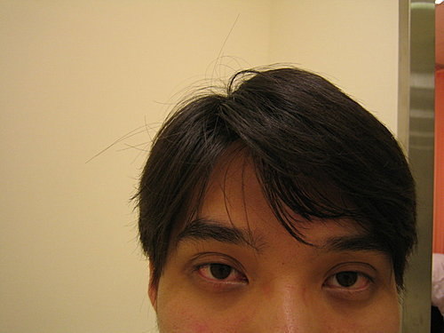 Dr.Lee的醫美特色:黑眼圈