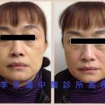 變臉系列(二)隨著時間增加膠原蛋白